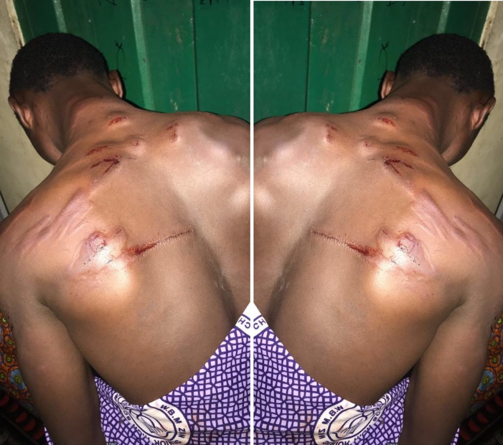 Group attacks teacher, inflicts cutlasses wounds for seizing phone