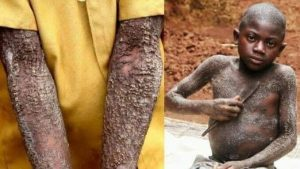 12-Year-Old Boy Turning Into A Stone